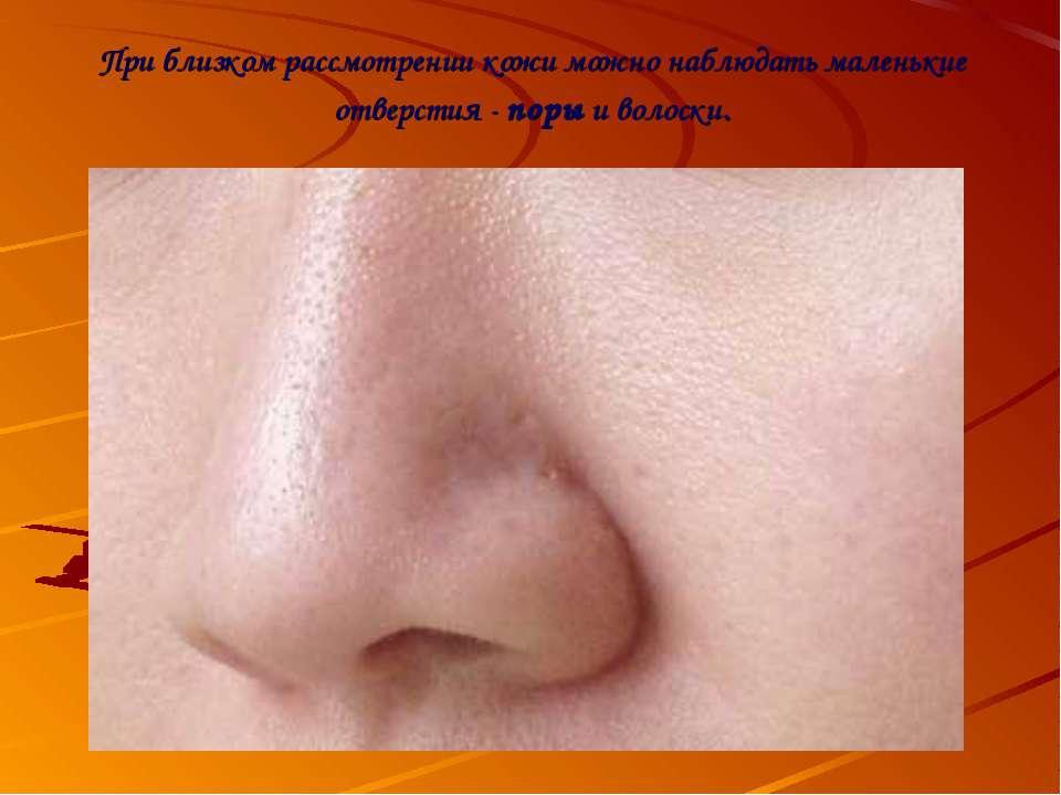 При близком рассмотрении кожи можно наблюдать маленькие отверстия - поры и во...