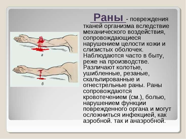 Раны - повреждения тканей организма вследствие механического воздействия, соп...
