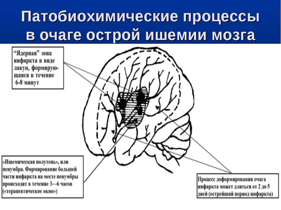Патобиохимические процессы в очаге острой ишемии мозга
