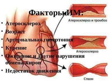 Факторы ИМ: Атеросклероз Возраст Артериальная гипертония Курение Ожирение и д...