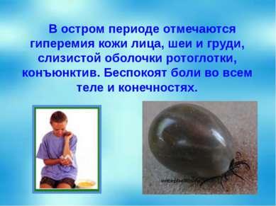 В остром периоде отмечаются гиперемия кожи лица, шеи и груди, слизистой оболо...