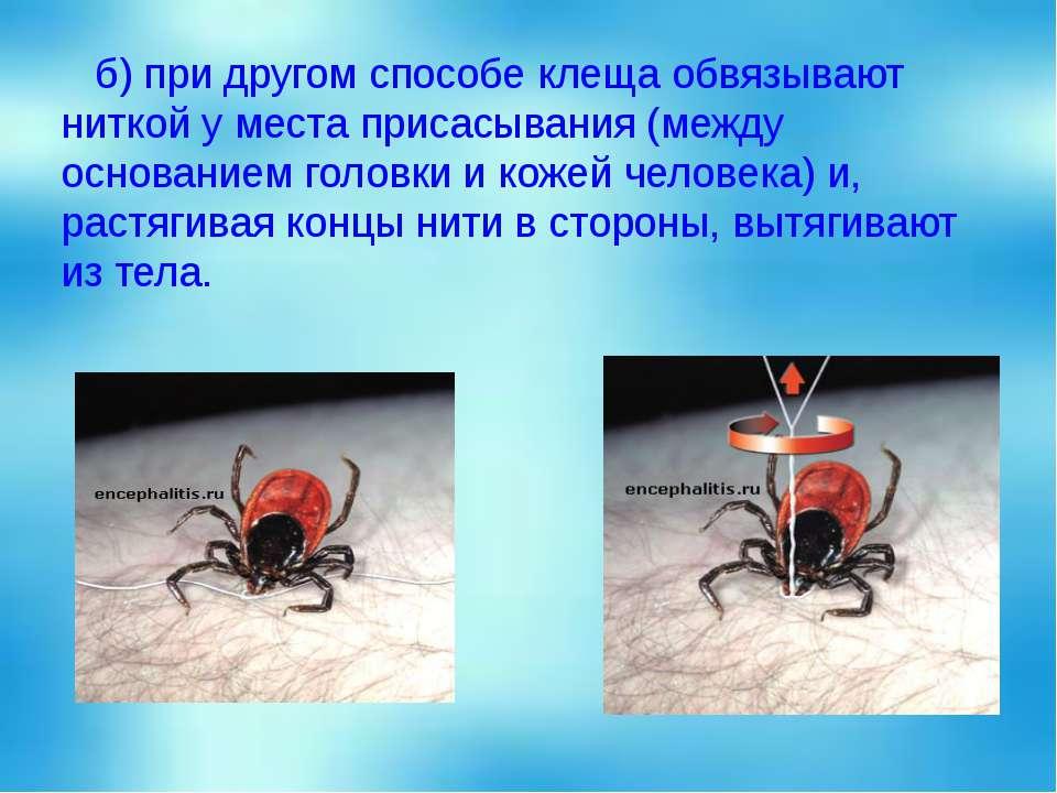 б) при другом способе клеща обвязывают ниткой у места присасывания (между осн...