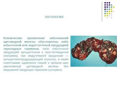 Клинические проявления заболеваний щитовидной железы обусловлены либо избыточ...
