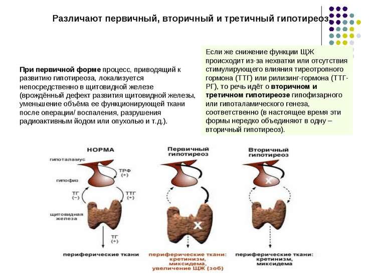 Различают первичный, вторичный и третичный гипотиреоз. При первичной форме пр...