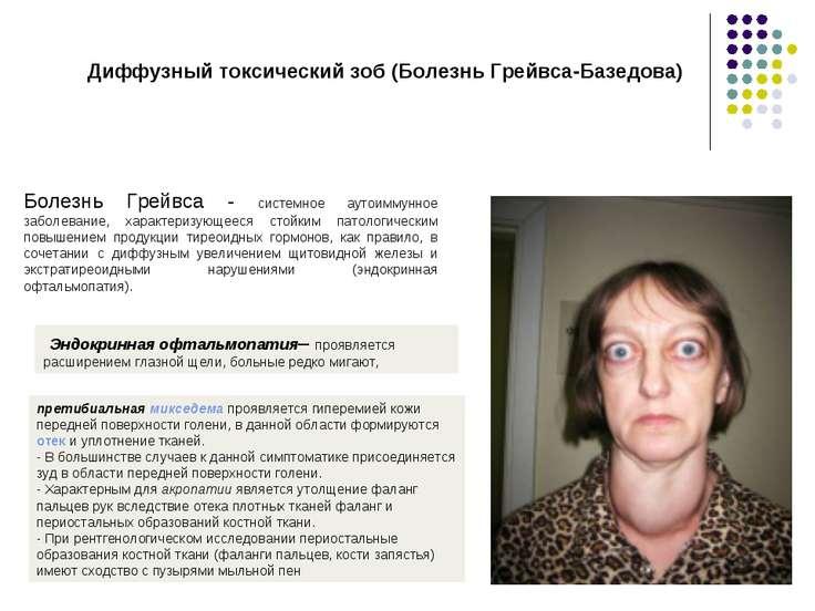 Диффузный токсический зоб (Болезнь Грейвса-Базедова) Болезнь Грейвса - систем...