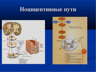 Ноцицептивные пути