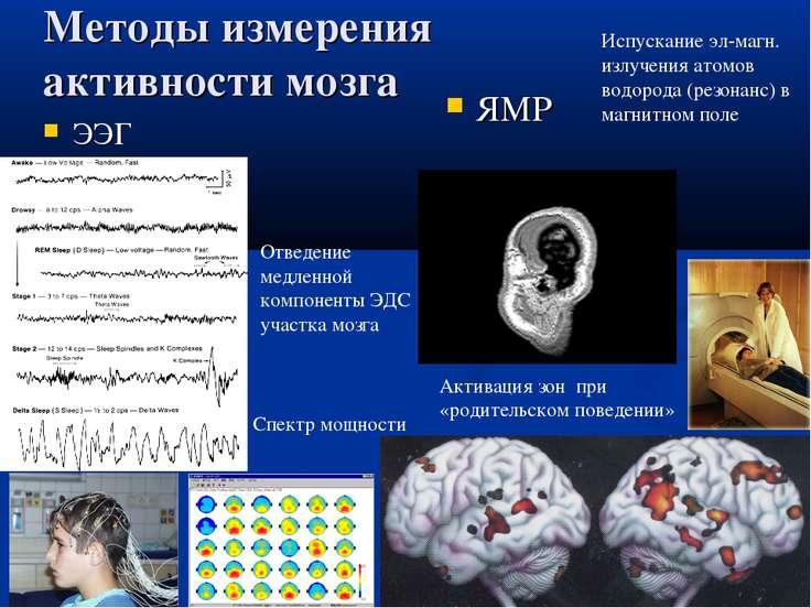 Методы измерения активности мозга ЭЭГ ЯМР Отведение медленной компоненты ЭДС ...