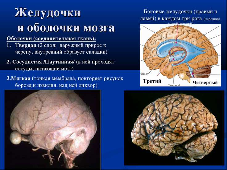 Желудочки и оболочки мозга Боковые желудочки (правый и левый) в каждом три ро...
