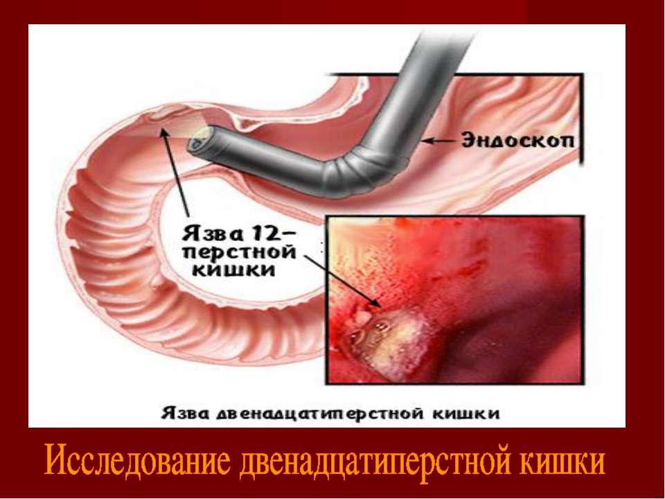 """Презентация на тему """"Язвенная болезнь желудка и двенадцатиперстной кишки"""" - скачать презентации по Медицине"""